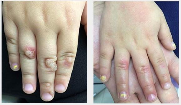 Шипица на пальце лечение в домашних условиях
