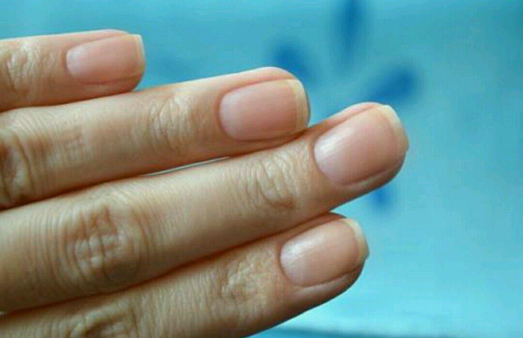 Ногти растут волной причины