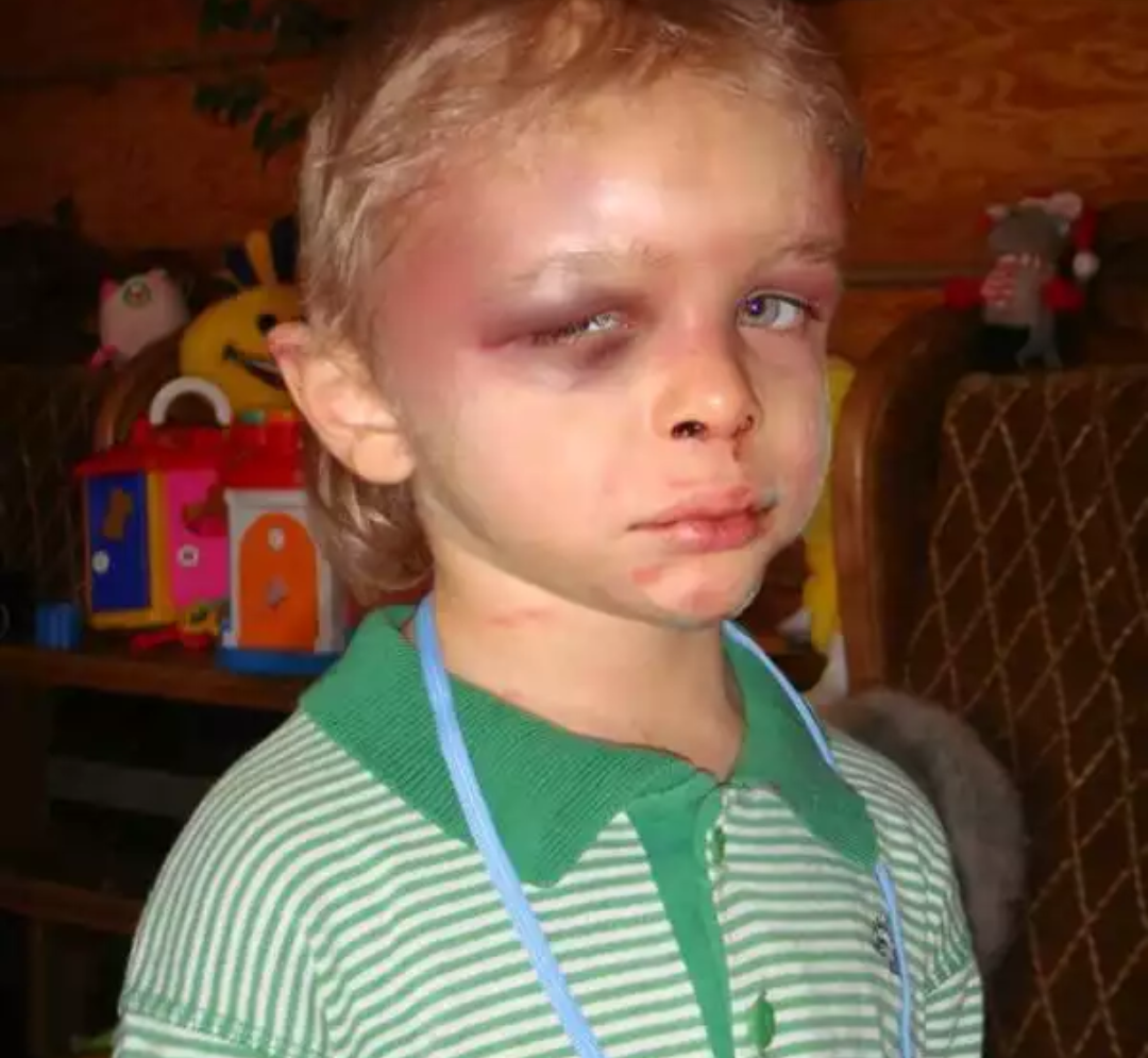 Как понять что нос у ребёнка сломан фото