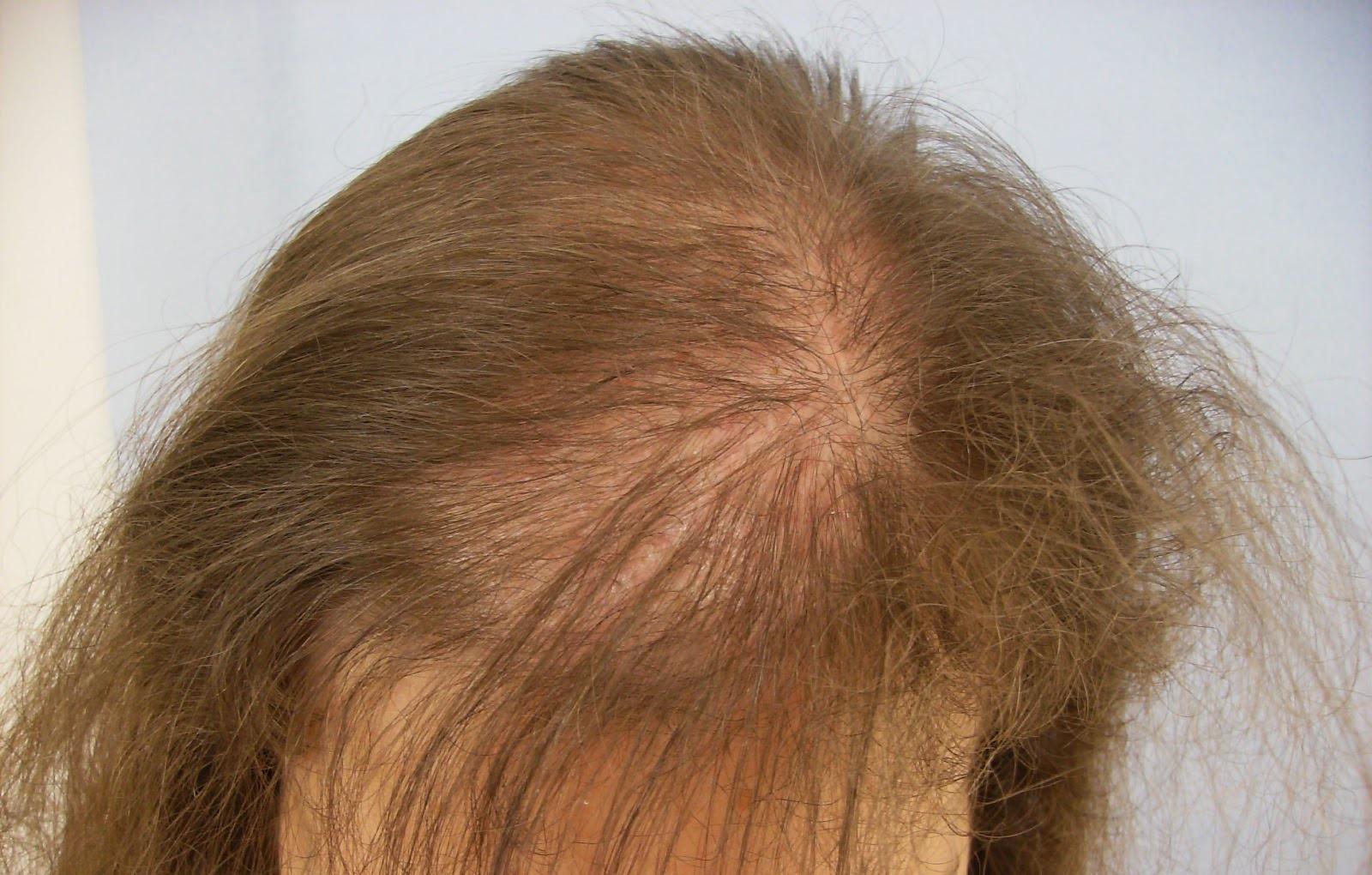 Почему выпадают волосы во всех телах