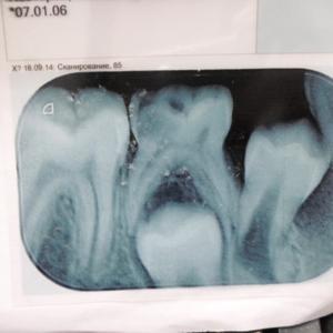 зубик посередине.