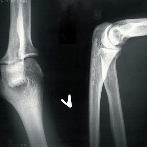 Рентгенограмма локтевого сустава при первичном осмотре